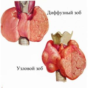 Чем опасен зоб щитовидной железы и как его вылечить?